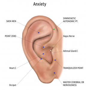 auriculotherapy anxiety