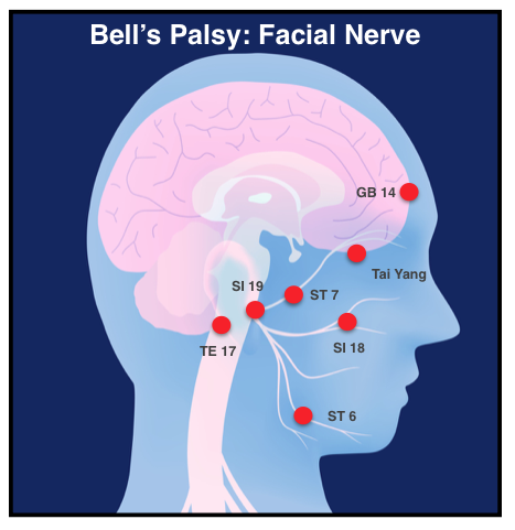 bell's palsy protocol